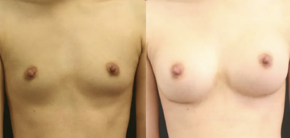 Breast Augmentation before and after image - 1