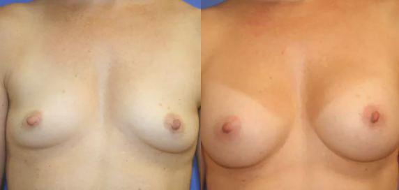 Breast Augmentation before and after image - 2