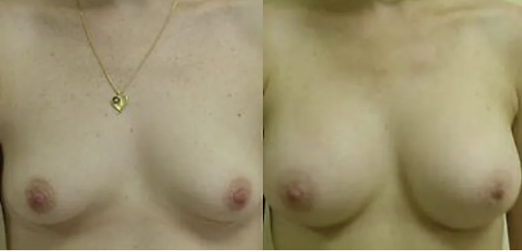 Breast Augmentation before and after image - 3