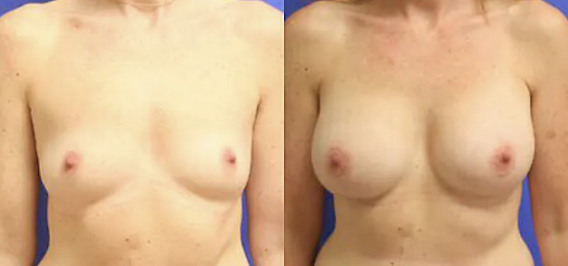 Breast Augmentation before and after image - 4