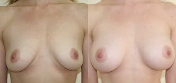 Breast Augmentation before and after image - 5