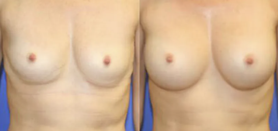 Breast Augmentation before and after image - 6