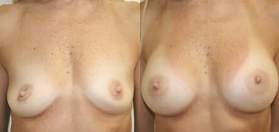 Breast Augmentation before and after image - 7