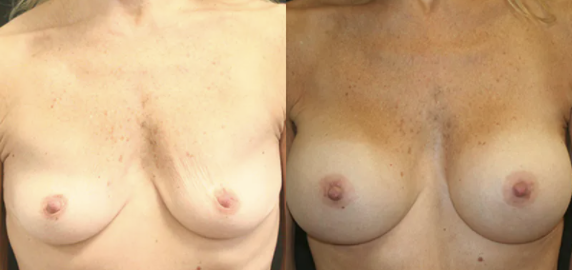 Breast Augmentation before and after image - 8
