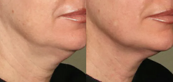 Ultherapy Before and After - 1