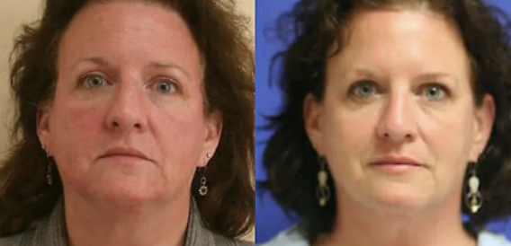 Ultherapy Before and After - 4