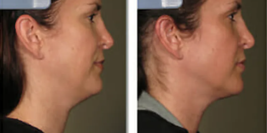 Ultherapy Before and After - 5