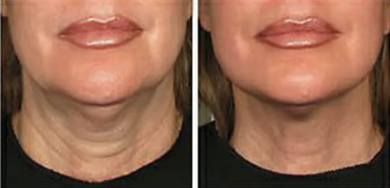 Ultherapy Before and After - 6