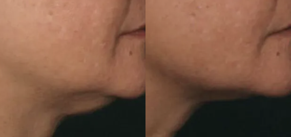 Ultherapy Before and After - 3