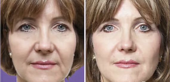 Juvederm Before and After - 1