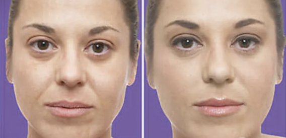 Juvederm Before and After - 2