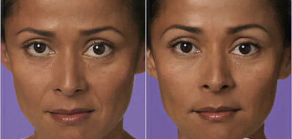 Juvederm Before and After - 3