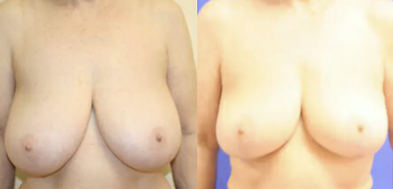 Breast Reduction Before and After - 1