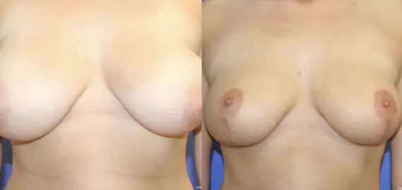 Breast Reduction Before and After - 2