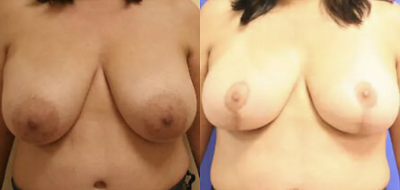 Breast Reduction Before and After - 3