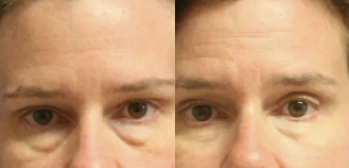 Eyelid surgery before and after - 1