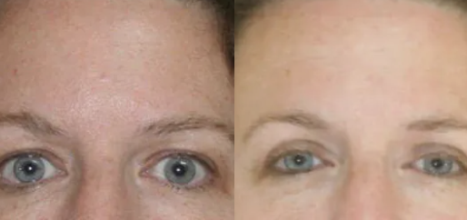 Eyelid surgery before and after - 2