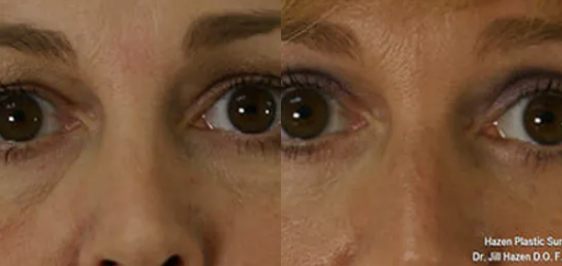 Eyelid surgery before and after - 3
