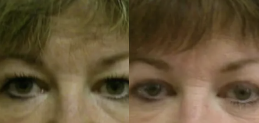Eyelid surgery before and after - 4