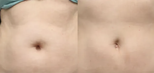 Coolsculpting before and after - 2