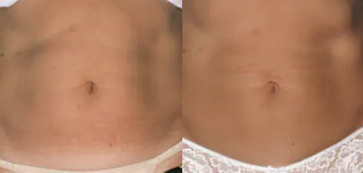 Coolsculpting before and after - 3