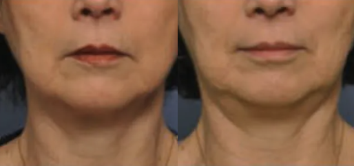 Coolsculpting before and after - 5