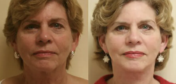 facelift before and after - 1