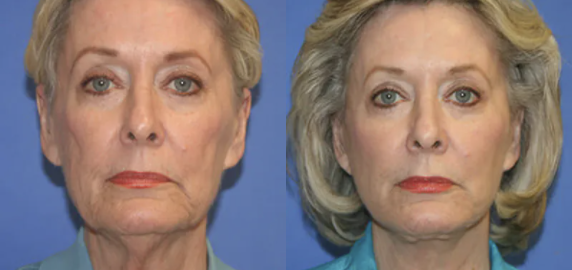 facelift before and after - 2
