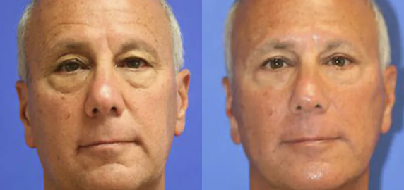 facelift before and after - 3