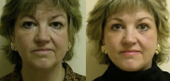 facelift before and after - 4