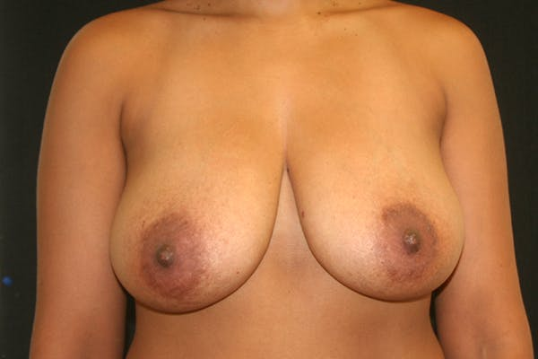 Breast Reduction Gallery - Patient 51001368 - Image 1