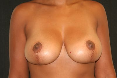 Breast Reduction Gallery - Patient 51001368 - Image 2