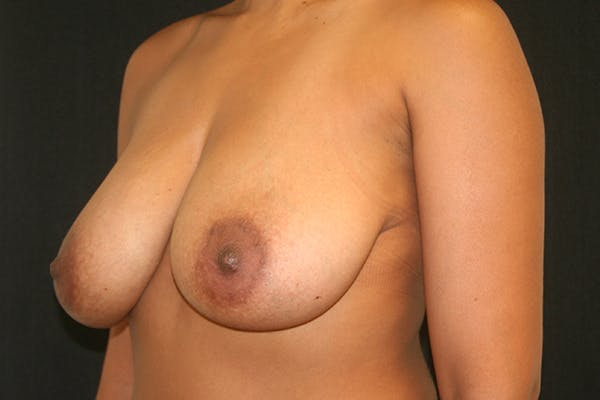 Breast Reduction Gallery - Patient 51001368 - Image 3