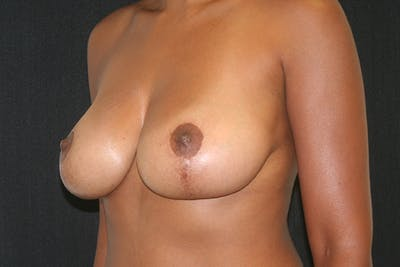 Breast Reduction Gallery - Patient 51001368 - Image 4