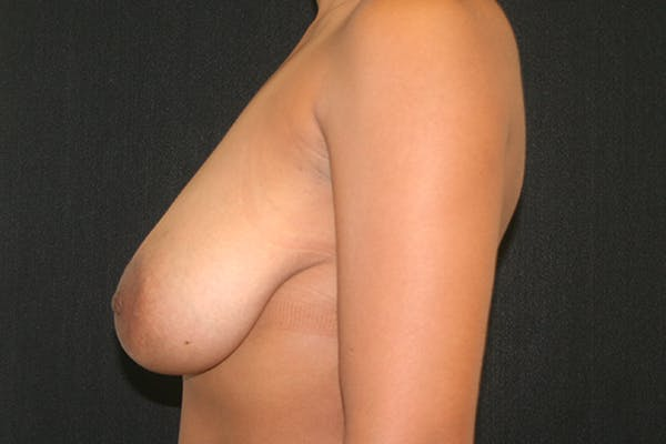 Breast Reduction Gallery - Patient 51001368 - Image 5