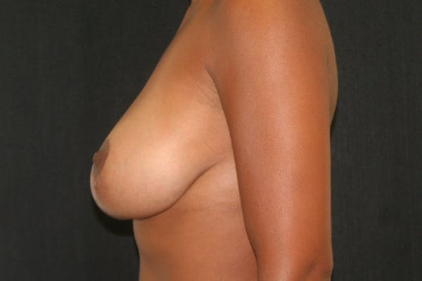 Breast Reduction Gallery - Patient 51001368 - Image 6