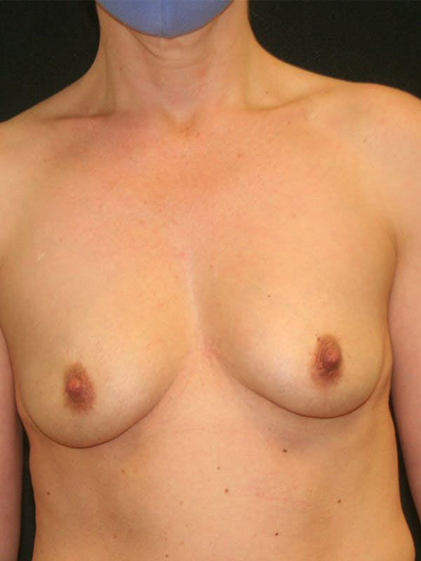 Breast Augmentation Gallery - Patient 57555367 - Image 1