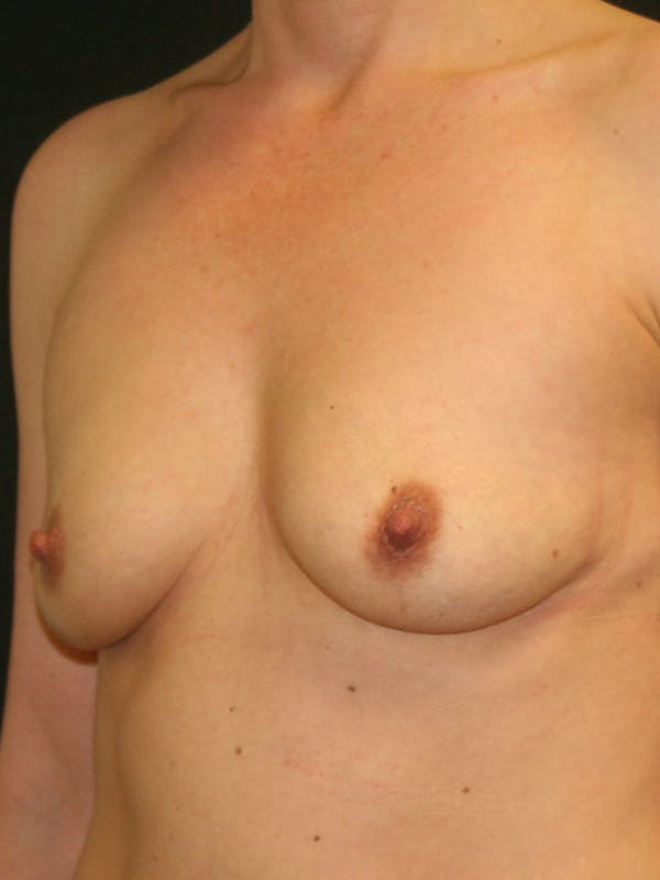 Breast Augmentation Gallery - Patient 57555367 - Image 3