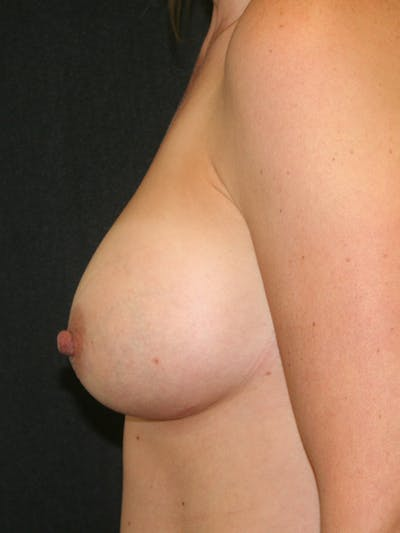Breast Augmentation Gallery - Patient 57555367 - Image 6