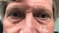 Eyelid Surgery Gallery - Patient 32619504 - Image 1