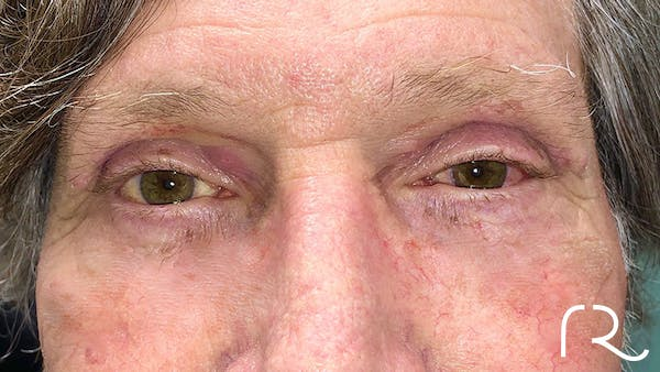 Eyelid Surgery Gallery - Patient 32619504 - Image 2