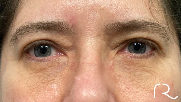 Eyelid Surgery Gallery - Patient 32619505 - Image 2