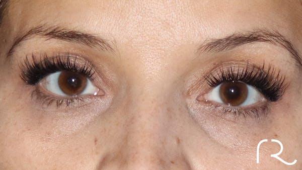 Brilliant Eyelid Lift (BEL Procedure) Gallery - Patient 32619637 - Image 1