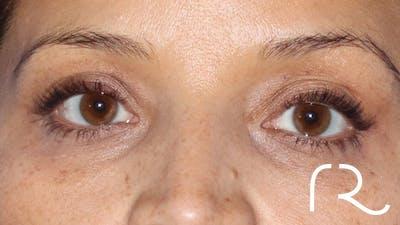 Brilliant Eyelid Lift (BEL Procedure) Gallery - Patient 32619637 - Image 2
