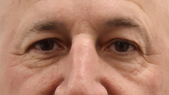 Male Eyelid Surgery Results