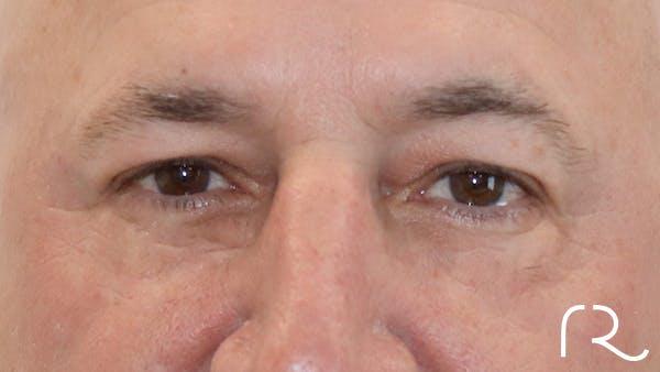 Brilliant Eyelid Lift (BEL Procedure) Gallery - Patient 32619638 - Image 2
