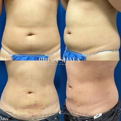 Liposuction Gallery - Patient 40314477 - Image 1