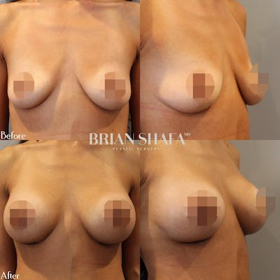 Breast Augmentation  Gallery - Patient 40314520 - Image 1