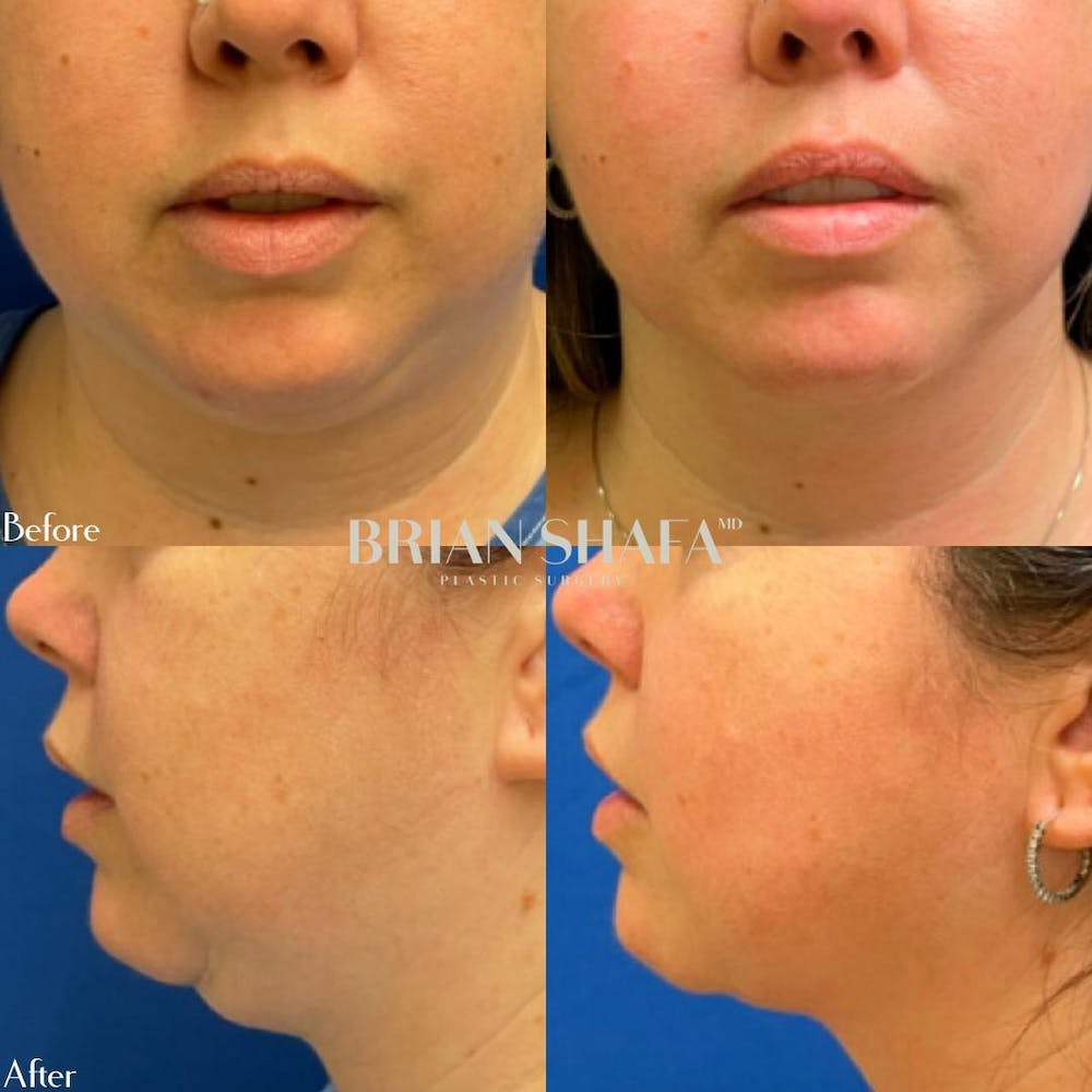 Jawline Sculpting Gallery - Patient 40314549 - Image 1
