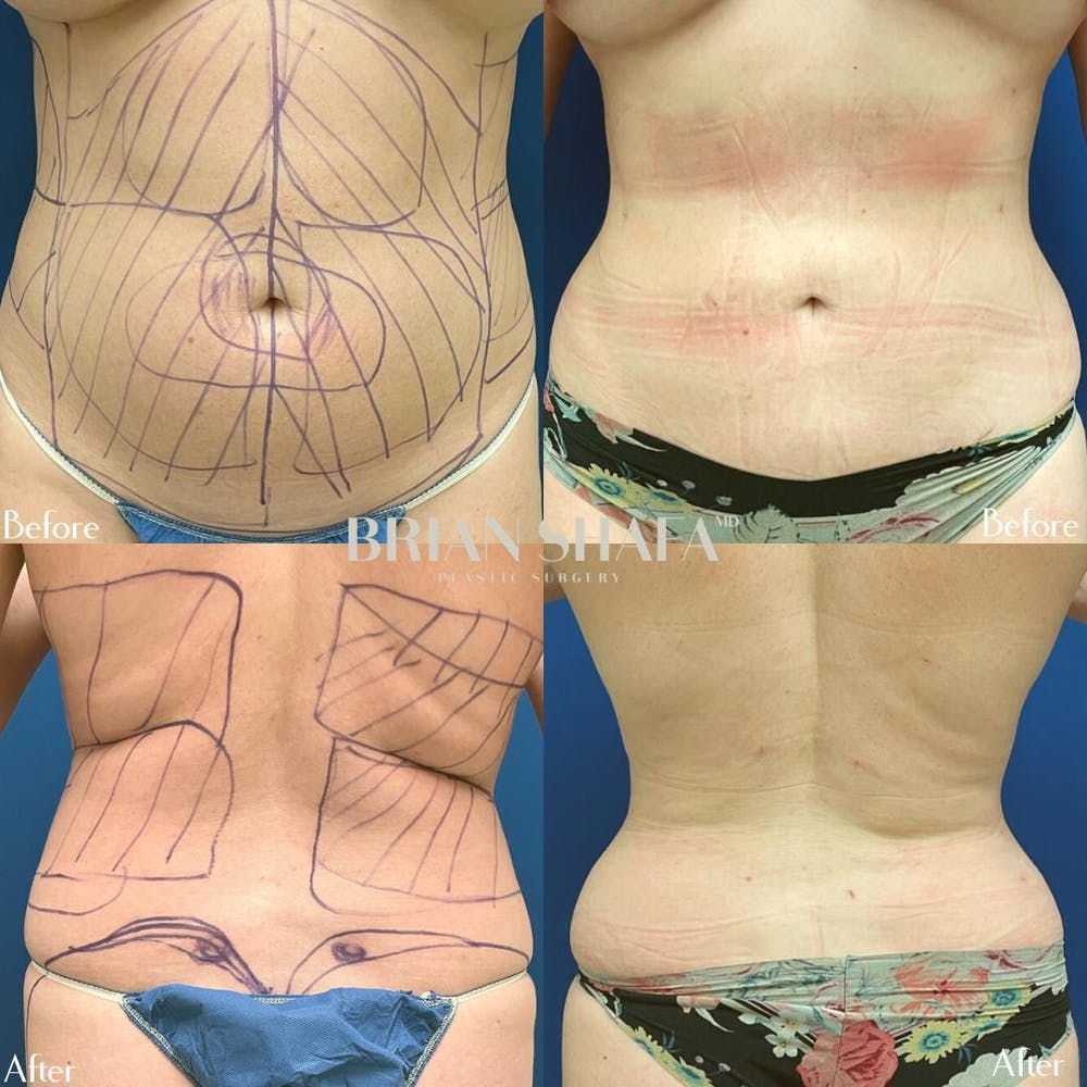 Liposuction Gallery - Patient 40314583 - Image 1